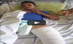 خطير المستشفى الجهوي ببني ملال بدون أطباء التخدير